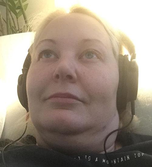 Bilder Och Mina Symptom När Jag åt Levaxin Och På Ndt
